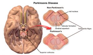 Parkinsons Disease | In home Health Care | Assisting Hands Houston